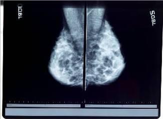 X-Ray_Mammogram_2834738